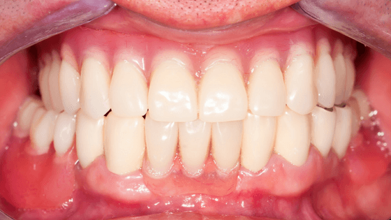 Full Mouth Rehab After Treatment