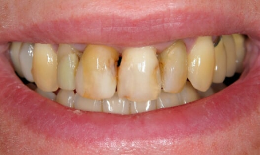 Teeth In a Day Before Treatment