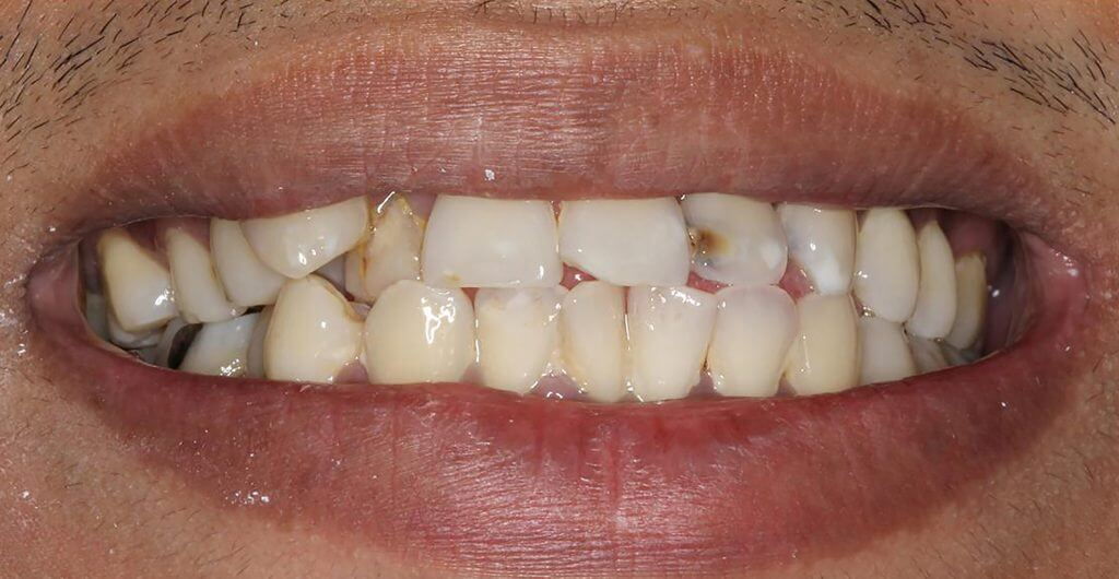 Before Ceramic Veneers