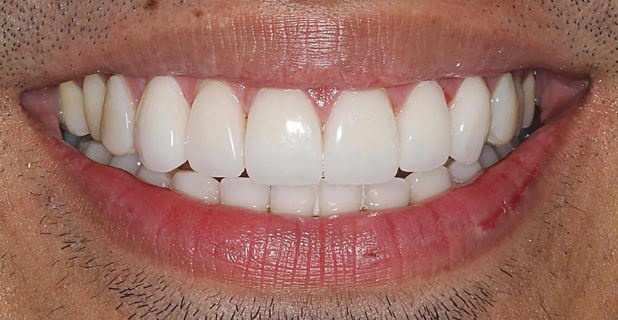 After Ceramic Veneers